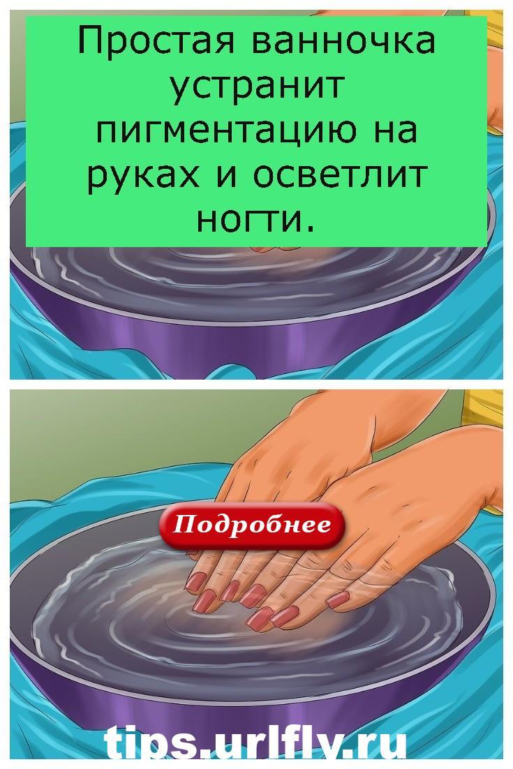 Простая ванночка устранит пигментацию на руках и осветлит ногти.